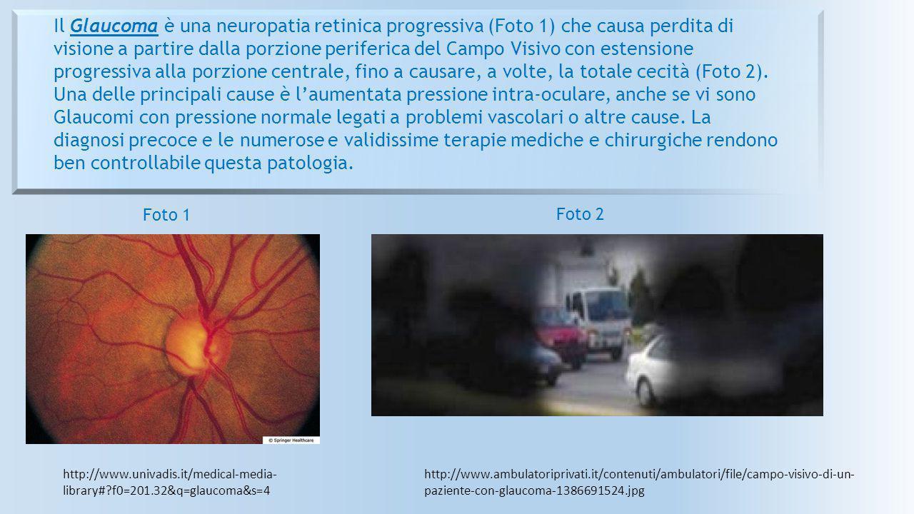 http://www.univadis.it/medical-media- library#?f0=201.32&q=glaucoma&s=4 Il Glaucoma è una neuropatia retinica progressiva (Foto 1) che causa perdita d