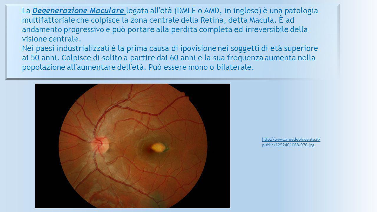 http://www.amedeolucente.it/ public/1252401068-976.jpg La Degenerazione Maculare legata all'età (DMLE o AMD, in inglese) è una patologia multifattoria