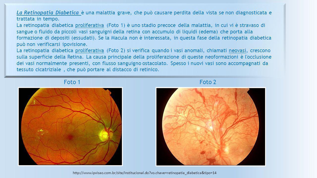La Retinopatia Diabetica è una malattia grave, che può causare perdita della vista se non diagnosticata e trattata in tempo. La retinopatia diabetica