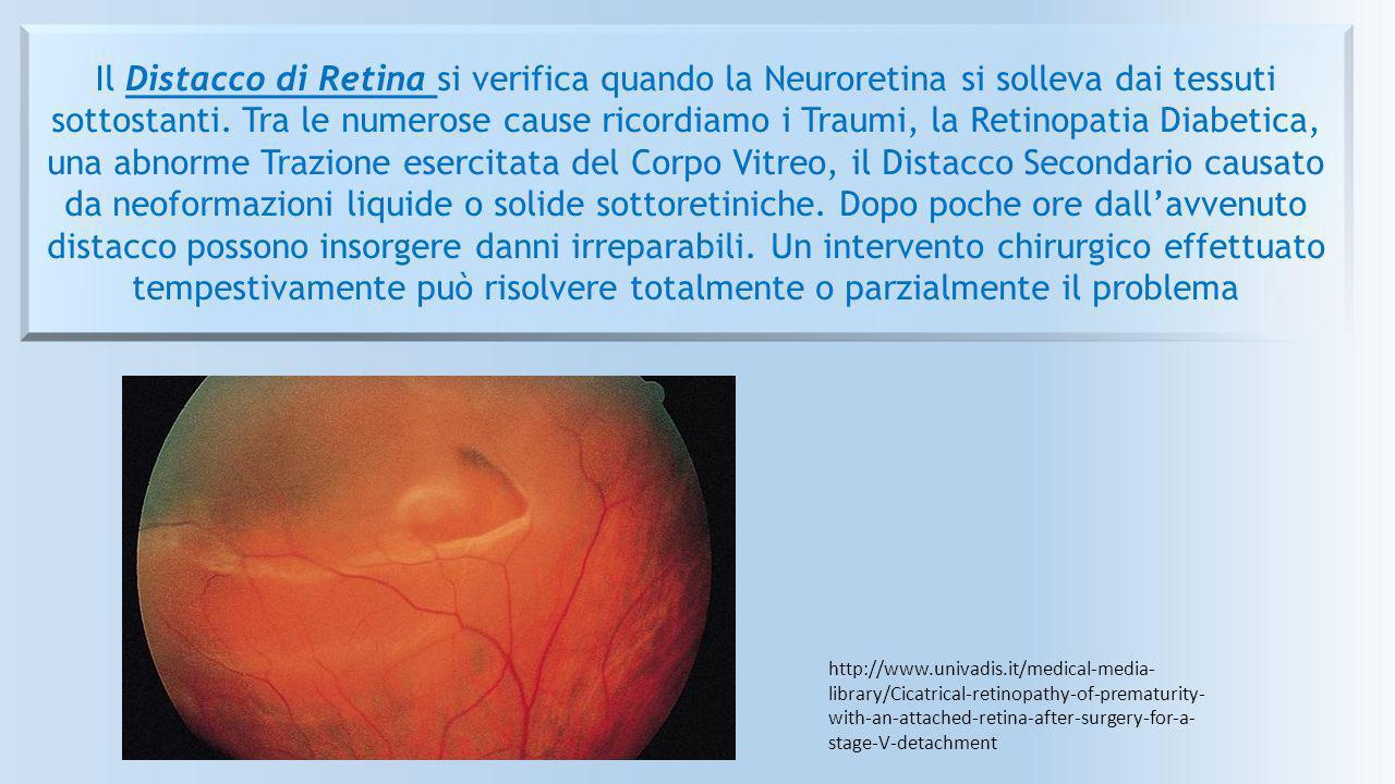 Il Distacco di Retina si verifica quando la Neuroretina si solleva dai tessuti sottostanti. Tra le numerose cause ricordiamo i Traumi, la Retinopatia