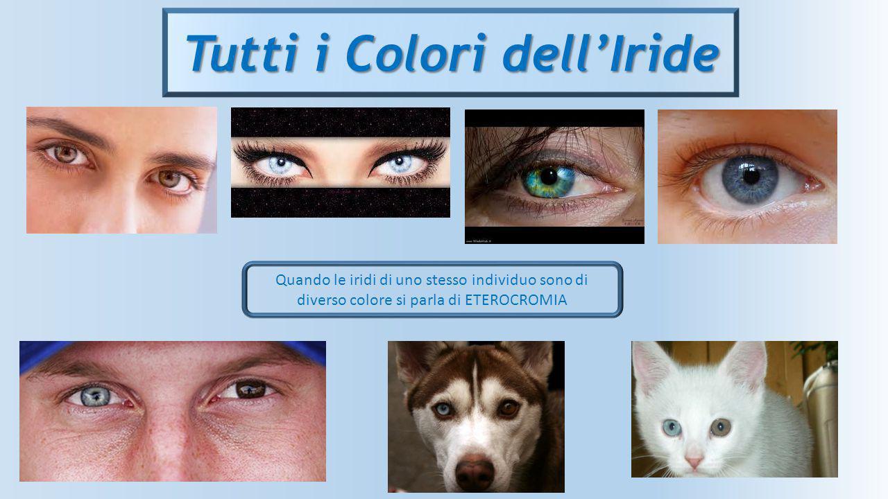 Tutti i Colori dell'Iride Quando le iridi di uno stesso individuo sono di diverso colore si parla di ETEROCROMIA