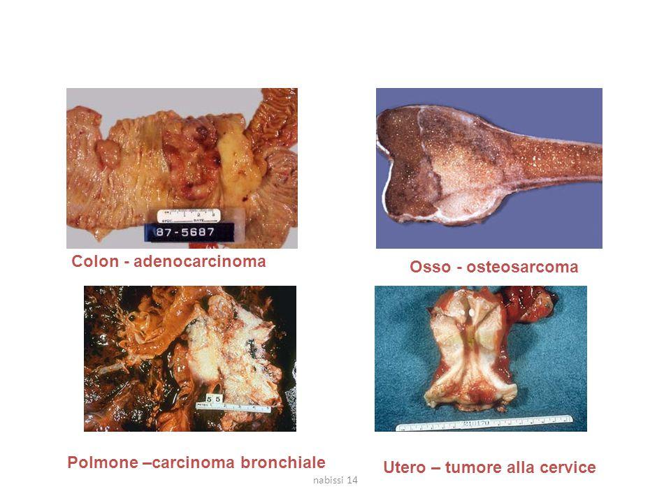 Tumori maligni Colon - adenocarcinoma Osso - osteosarcoma Polmone –carcinoma bronchiale Utero – tumore alla cervice nabissi 14