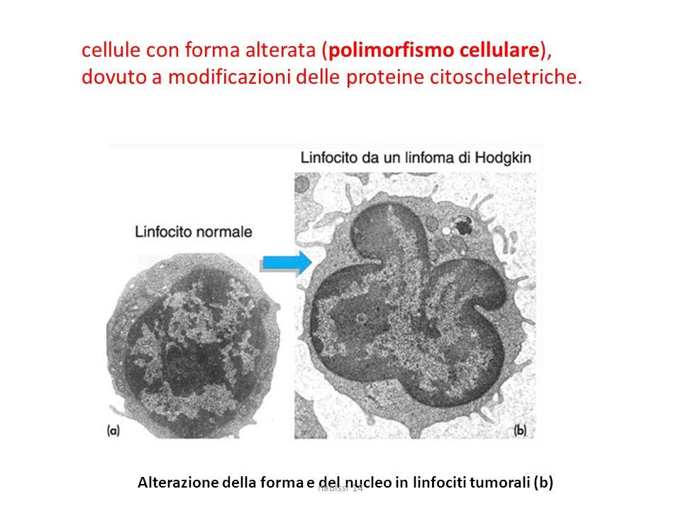 Alterazione della forma e del nucleo in linfociti tumorali (b) cellule con forma alterata (polimorfismo cellulare), dovuto a modificazioni delle prote