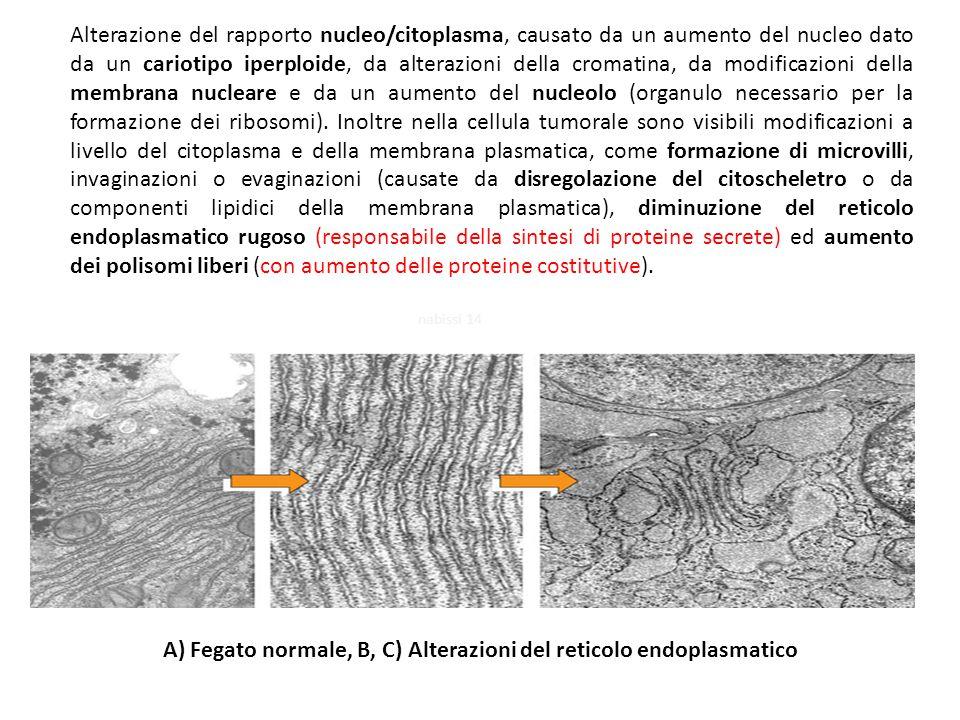 Alterazione del rapporto nucleo/citoplasma, causato da un aumento del nucleo dato da un cariotipo iperploide, da alterazioni della cromatina, da modif