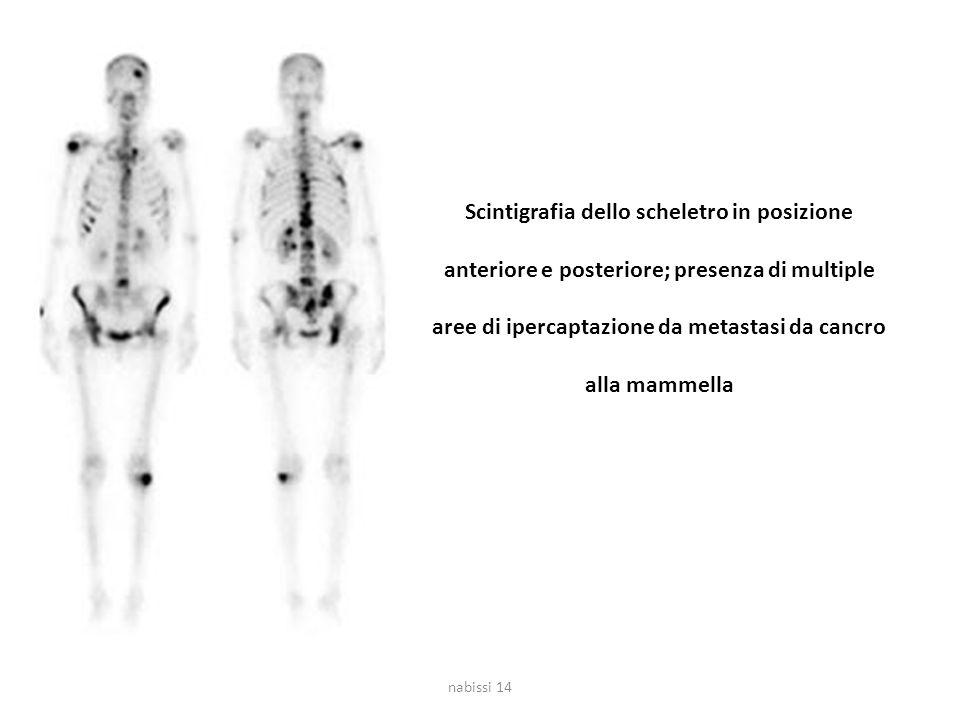 Scintigrafia dello scheletro in posizione anteriore e posteriore; presenza di multiple aree di ipercaptazione da metastasi da cancro alla mammella nab