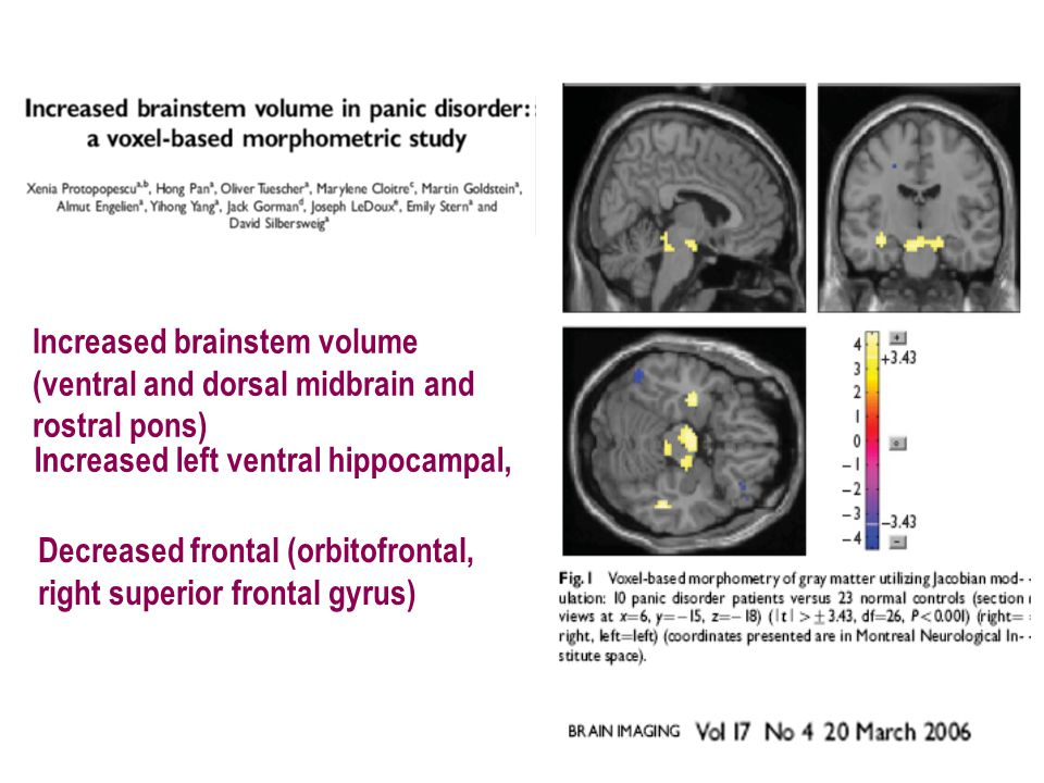 Subclinical Respiration Variability Subclinical Abnormal Function of the Homeostatic Brain .