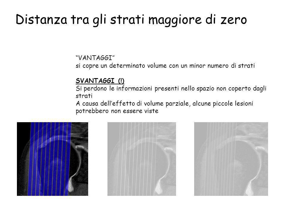 """Distanza tra gli strati maggiore di zero """"VANTAGGI"""" si copre un determinato volume con un minor numero di strati SVANTAGGI (!) Si perdono le informazi"""
