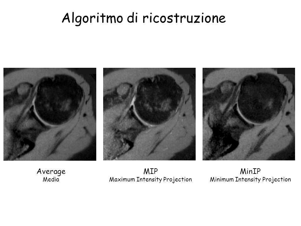Algoritmo di ricostruzione Average Media MIP Maximum Intensity Projection MinIP Minimum Intensity Projection