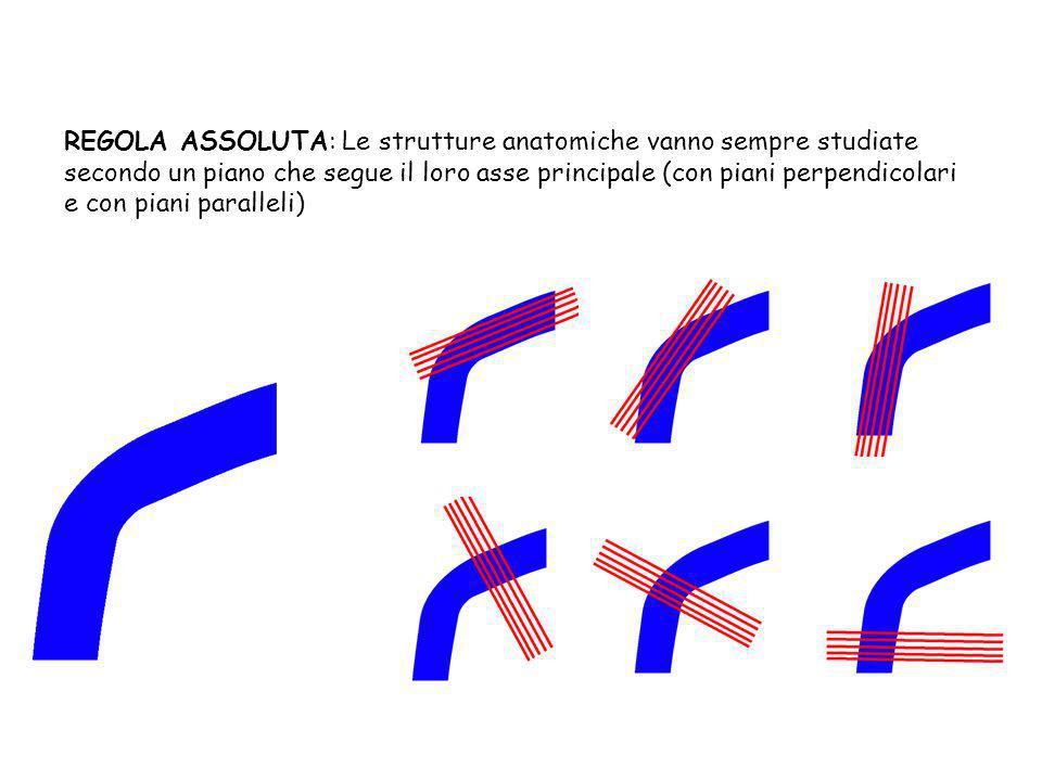 REGOLA ASSOLUTA: Le strutture anatomiche vanno sempre studiate secondo un piano che segue il loro asse principale (con piani perpendicolari e con pian