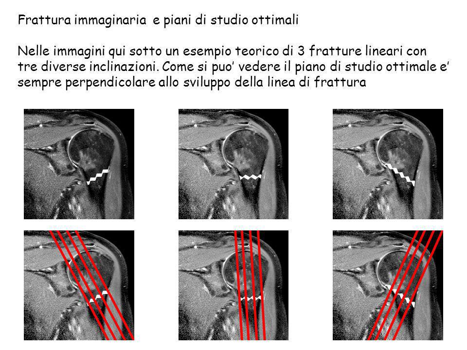 Frattura immaginaria e piani di studio ottimali Nelle immagini qui sotto un esempio teorico di 3 fratture lineari con tre diverse inclinazioni. Come s