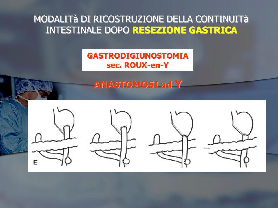 SINDROME DELL'ANTRO ESCLUSO: - Per residuo mucosa antrale nel moncone duodenale RITENUTO: - Insufficiente resezione gastrica verso l'alto ZOLLINGER-ELLISON - Ulcera peptica recidivante D.D.