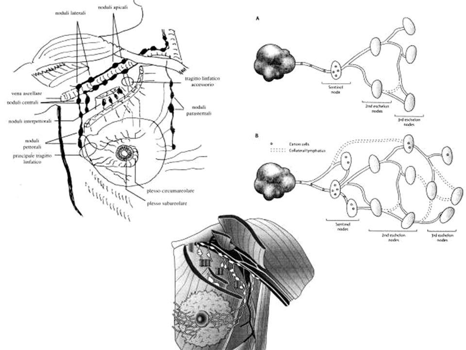 Fisiopatologia della linforrea Fattori anatomici Largo spazio morto che si determina sia nella regione mammaria che nell'ascella, con difficoltà di adesione tra i lembi.