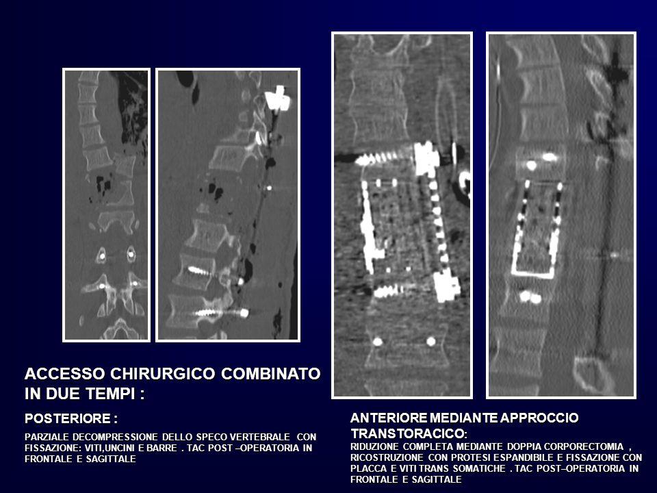 ACCESSO CHIRURGICO COMBINATO IN DUE TEMPI : POSTERIORE : PARZIALE DECOMPRESSIONE DELLO SPECO VERTEBRALE CON FISSAZIONE: VITI,UNCINI E BARRE. TAC POST