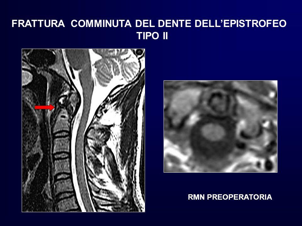 FRATTURA COMMINUTA DEL DENTE DELL'EPISTROFEO TIPO II RMN PREOPERATORIA