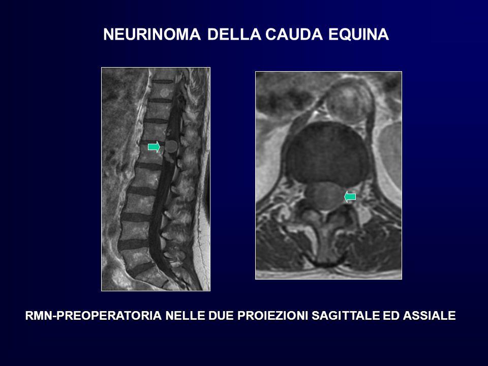 NEURINOMA DELLA CAUDA EQUINA RMN-PREOPERATORIA NELLE DUE PROIEZIONI SAGITTALE ED ASSIALE