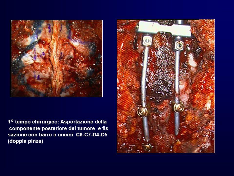 1° tempo chirurgico: Asportazione della componente posteriore del tumore e fis sazione con barre e uncini C6-C7-D4-D5 (doppia pinza)