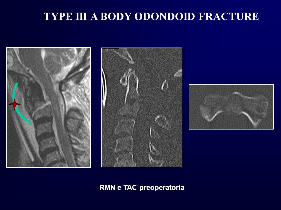 TYPE III A BODY ODONDOID FRACTURE RMN e TAC preoperatoria