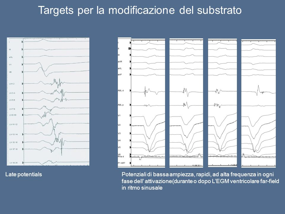 Targets per la modificazione del substrato Late potentialsPotenziali di bassa ampiezza, rapidi, ad alta frequenza in ogni fase dell' attivazione(duran
