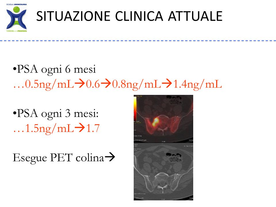 SITUAZIONE CLINICA ATTUALE PSA ogni 6 mesi …0.5ng/mL  0.6  0.8ng/mL  1.4ng/mL PSA ogni 3 mesi: …1.5ng/mL  1.7 Esegue PET colina 