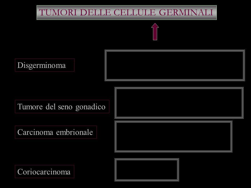 TUMORI DELLE CELLULE GERMINALI Disgerminoma Tumore del seno gonadico Carcinoma embrionale Coriocarcinoma Unilaterale Diffusione linfatica (l. lomboaor