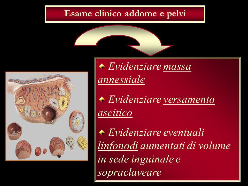 Esame clinico addome e pelvi Evidenziare massa annessiale Evidenziare versamento ascitico Evidenziare eventuali linfonodi aumentati di volume in sede