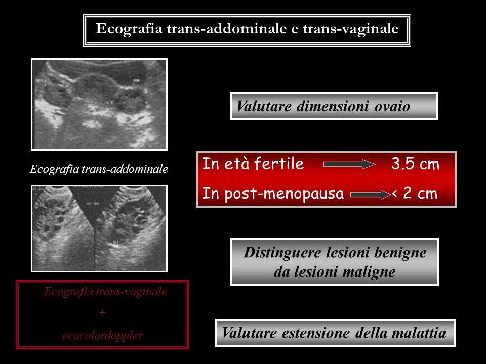 Ecografia trans-addominale e trans-vaginale Valutare dimensioni ovaio In età fertile 3.5 cm In post-menopausa < 2 cm Distinguere lesioni benigne da le
