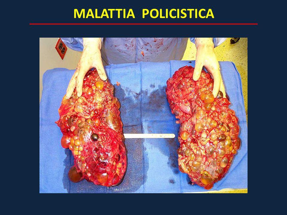 MALATTIA POLICISTICA
