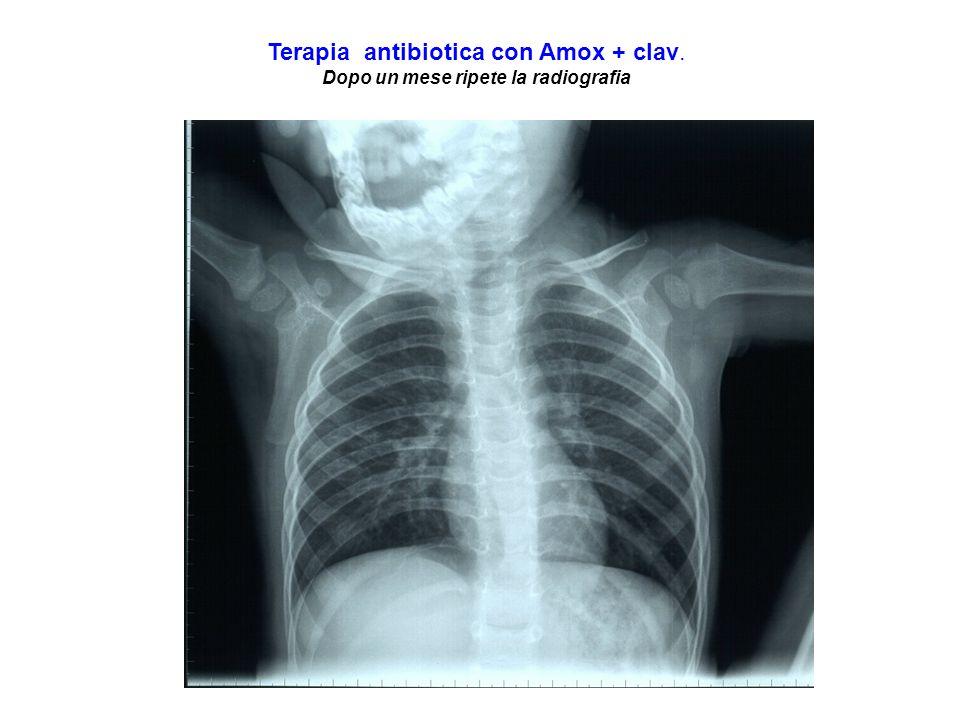 Terapia antibiotica con Amox + clav. Dopo un mese ripete la radiografia