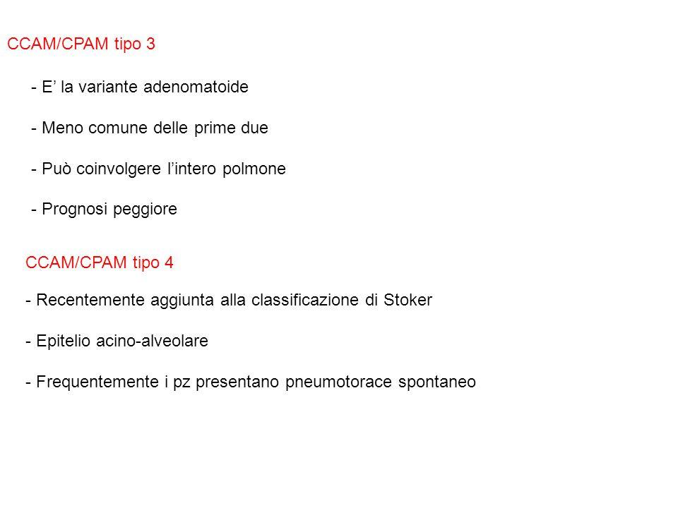 CCAM/CPAM tipo 3 - E' la variante adenomatoide - Meno comune delle prime due - Può coinvolgere l'intero polmone - Prognosi peggiore CCAM/CPAM tipo 4 -