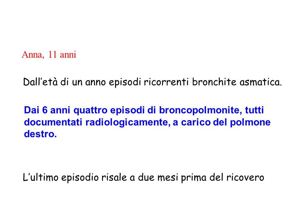 www.ospedalecardarelli.it Anna, 11 anni Dall'età di un anno episodi ricorrenti bronchite asmatica. L'ultimo episodio risale a due mesi prima del ricov