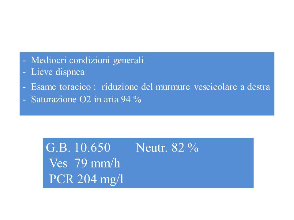 G.B. 10.650 Neutr. 82 % Ves 79 mm/h PCR 204 mg/l www.ospedalecardarelli.it - Mediocri condizioni generali - Lieve dispnea - Esame toracico : riduzione