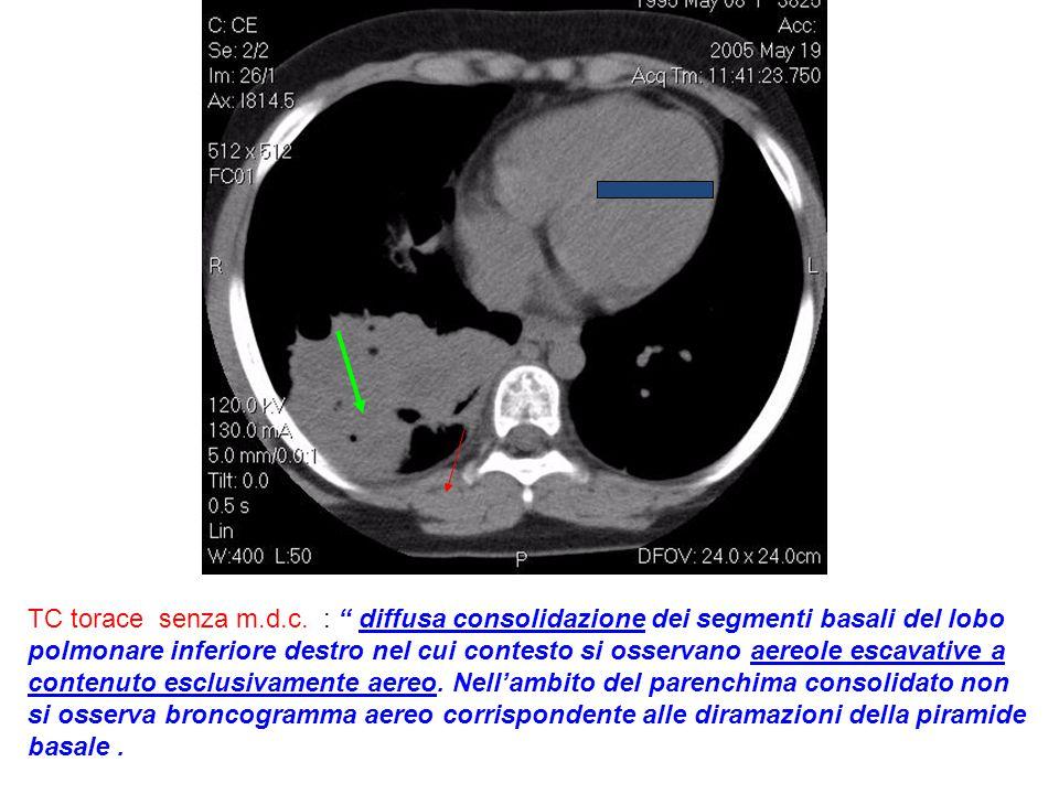 """www.ospedalecardarelli.it TC torace senza m.d.c. : """" diffusa consolidazione dei segmenti basali del lobo polmonare inferiore destro nel cui contesto s"""