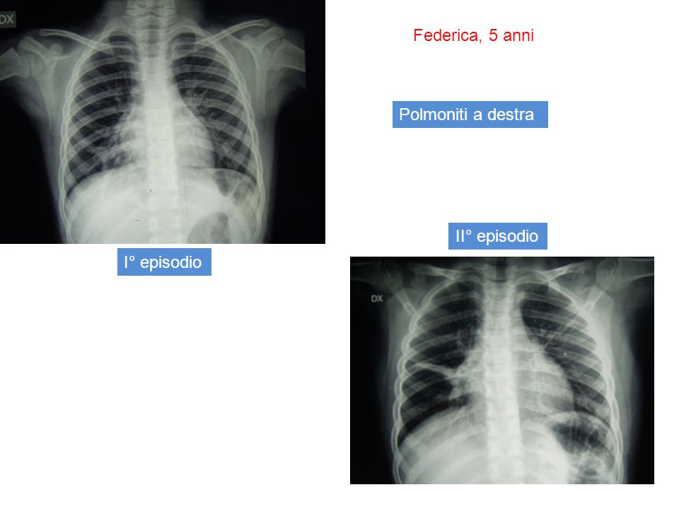 Quadro TC Bronchiectasie cilindriche: immagine a binario dei bronchi