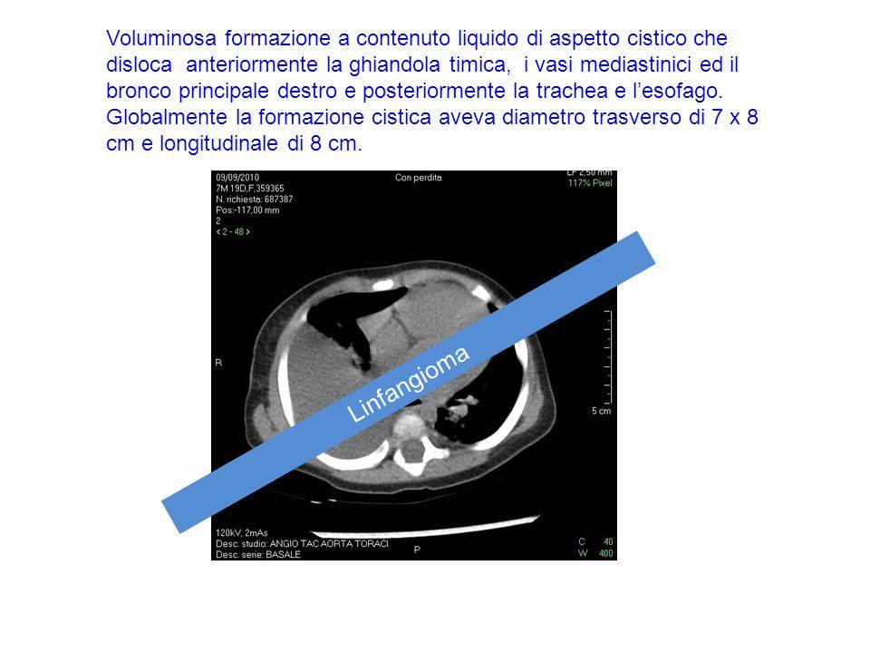 Voluminosa formazione a contenuto liquido di aspetto cistico che disloca anteriormente la ghiandola timica, i vasi mediastinici ed il bronco principal