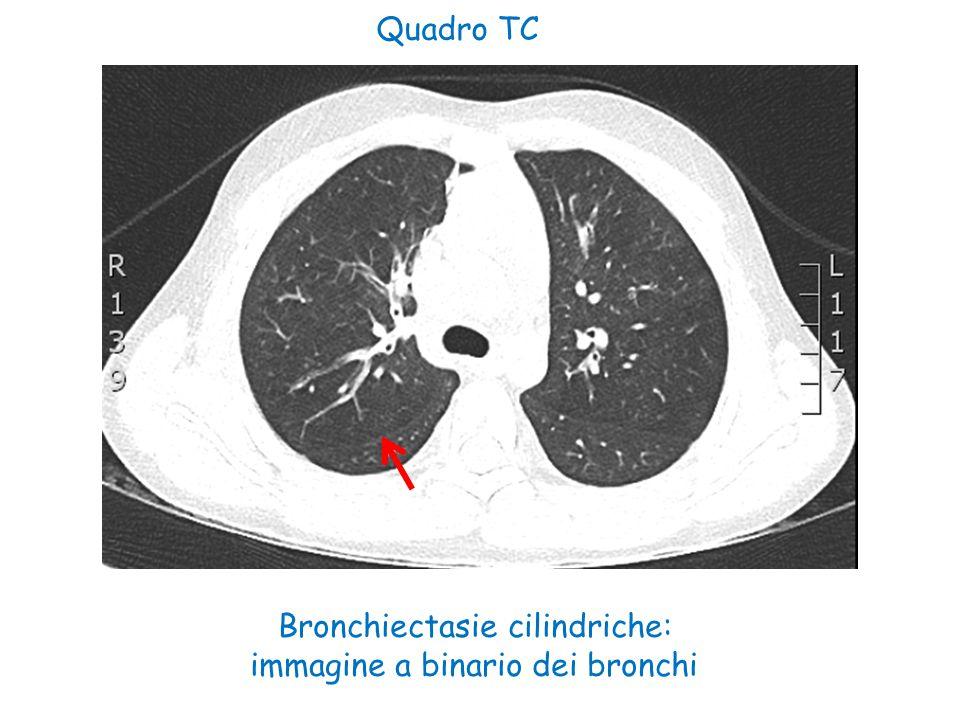 Classificazione secondo Stocker CCAM/CPAM tipo 1 : - La più frequente (60-70 % dei casi) -Esordio in età neonatale con distress respiratorio o nelle età successive con polmoniti ricorrenti - Cisti molto grandi ( > 10 cm ) - Prognosi favorevole CCAM/CPAM tipo 2 : -Meno frequente (15-20 % casi) - Cisti multiple di circa 0,5 cm - Ritrovata nel 40-50 % nei sequestri extralobari - Prognosi peggiore del tipo I, ma favorevole se non associata ad altre malformazioni -