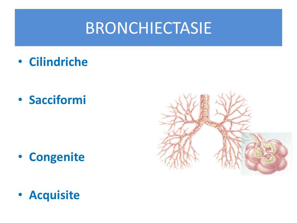 BRONCHIECTASIE CONGENITE Fibrosi Cistica Discinesia ciliare primitiva BRONCHIECTASIE ACQUISITE Post-infettive Post-ostruttive - Corpo estraneo inalato - Tumori a lenta crescita