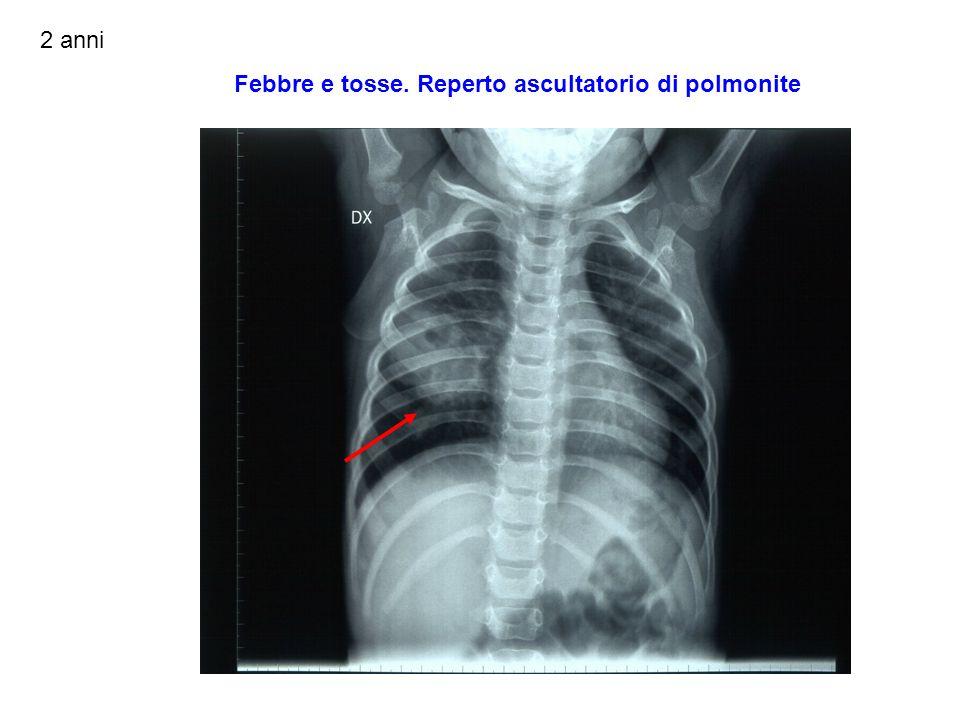 www.ospedalecardarelli.it Opacità che coinvolge i segmenti basali posteriori del lobo inferiore destro, disomogenea per presenza di multipli livelli idro-aerei (ascessualizzazione)