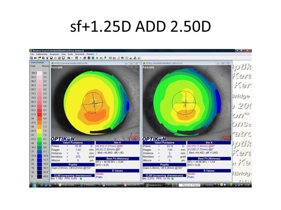 sf+1.25D ADD 2.50D