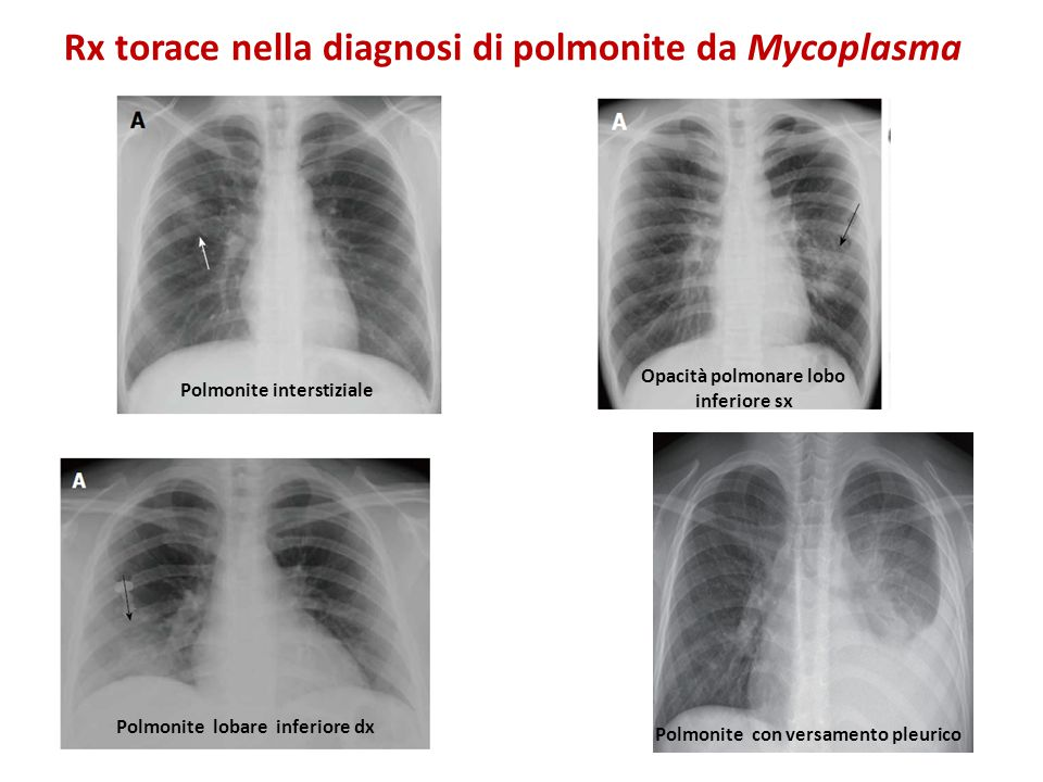 Rx torace nella diagnosi di polmonite da Mycoplasma Polmonite interstiziale Polmonite lobare inferiore dx Opacità polmonare lobo inferiore sx Polmonite con versamento pleurico