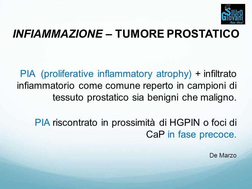 INFIAMMAZIONE – TUMORE PROSTATICO PIA (proliferative inflammatory atrophy) + infiltrato infiammatorio come comune reperto in campioni di tessuto prost