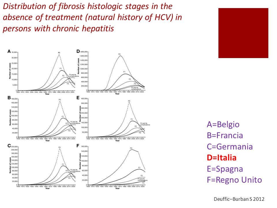 A=Belgio B=Francia C=Germania D=Italia E=Spagna F=Regno Unito Distribution of fibrosis histologic stages in the absence of treatment (natural history of HCV) in persons with chronic hepatitis Deuffic–Burban S 2012