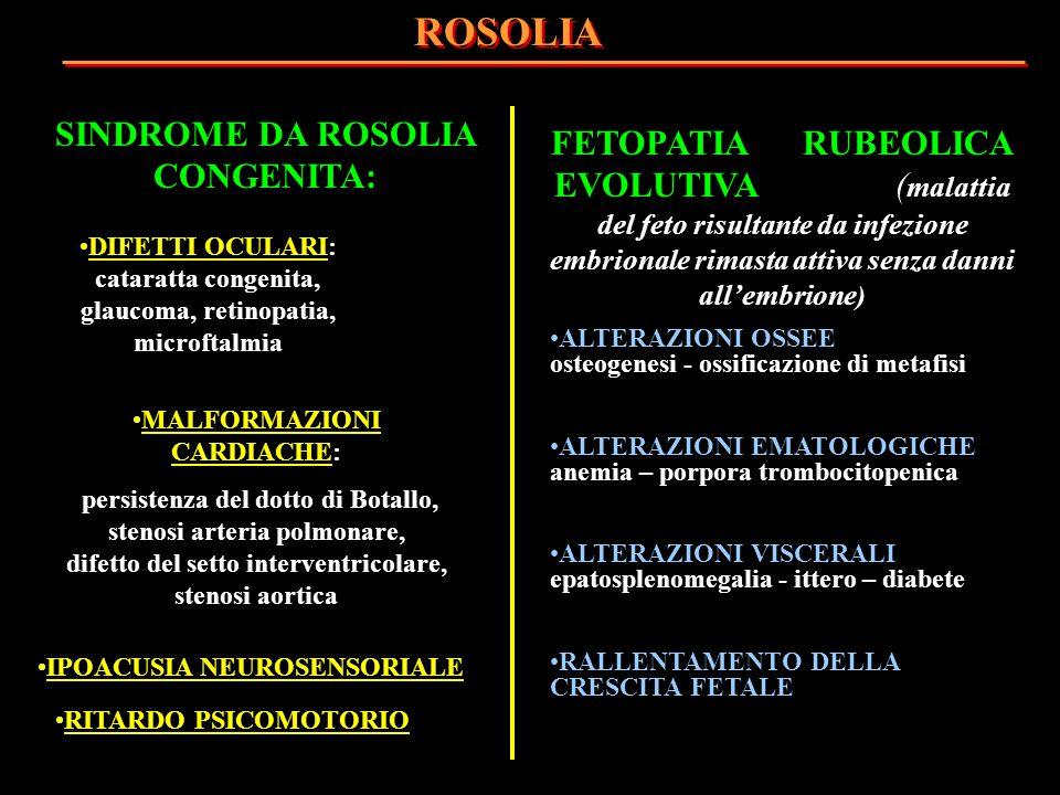 SINDROME DA ROSOLIA CONGENITA: DIFETTI OCULARI: cataratta congenita, glaucoma, retinopatia, microftalmia MALFORMAZIONI CARDIACHE: persistenza del dott