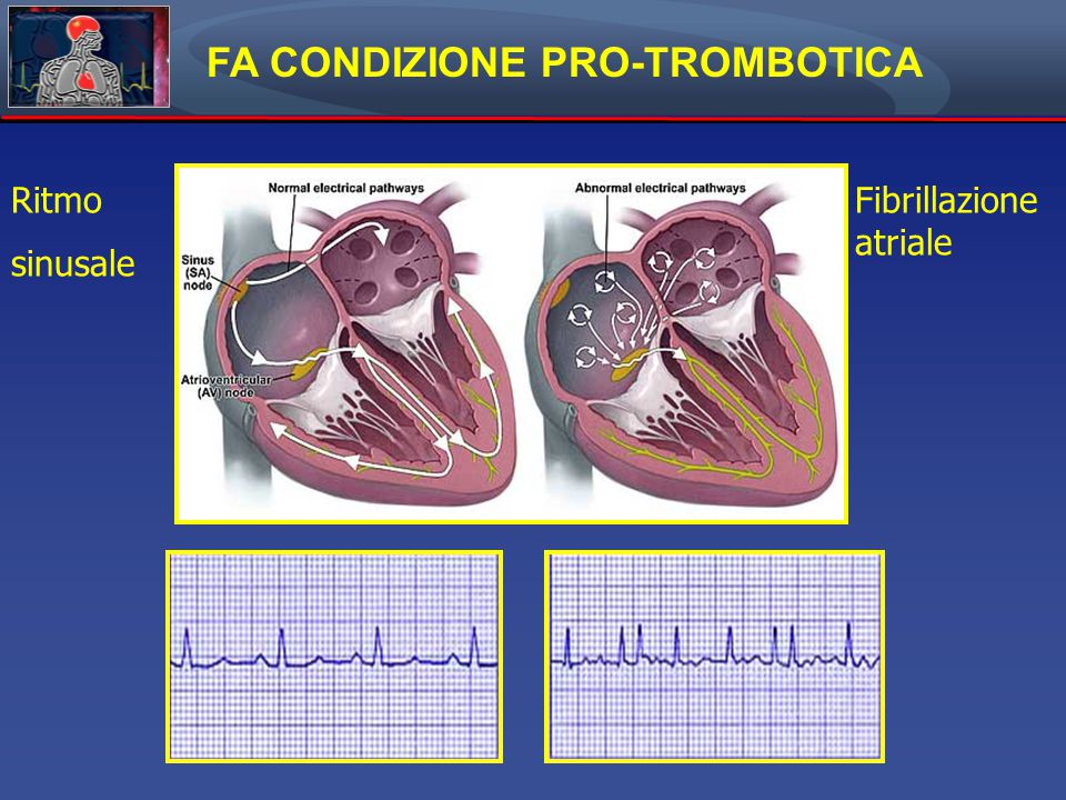 Dentali F et al.Circulation. 2012;126:2381-2391 Copyright © American Heart Association, Inc.
