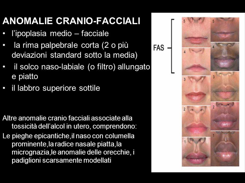 ANOMALIE CRANIO-FACCIALI l'ipoplasia medio – facciale la rima palpebrale corta (2 o più deviazioni standard sotto la media) il solco naso-labiale (o filtro) allungato e piatto il labbro superiore sottile Altre anomalie cranio facciali associate alla tossicità dell'alcol in utero, comprendono: Le pieghe epicantiche,il naso con columella prominente,la radice nasale piatta,la micrognazia,le anomalie delle orecchie, i padiglioni scarsamente modellati