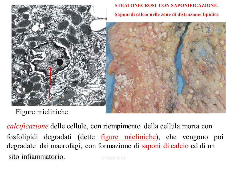 Figure mieliniche STEATONECROSI CON SAPONIFICAZIONE.