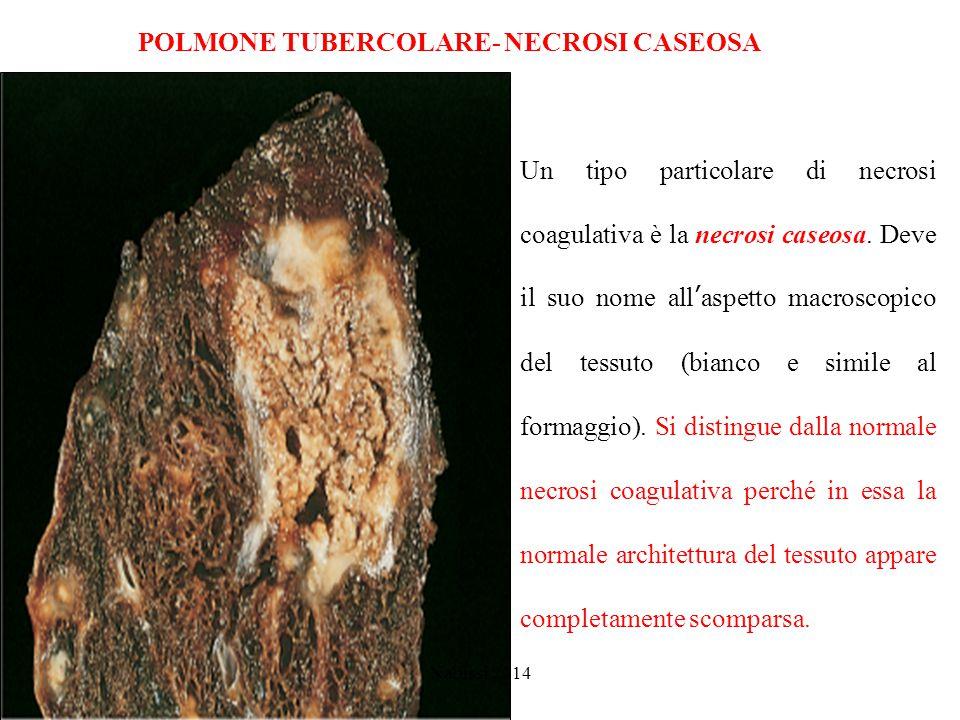 POLMONE TUBERCOLARE- NECROSI CASEOSA Nabissi 2014 Un tipo particolare di necrosi coagulativa è la necrosi caseosa.