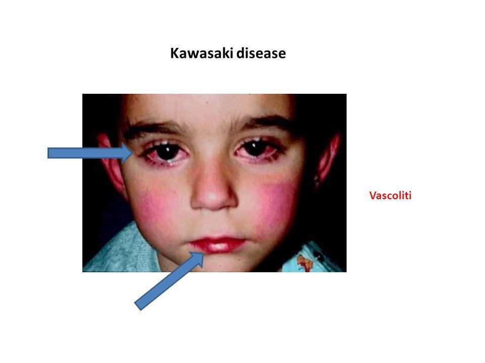 Kawasaki disease Vascoliti