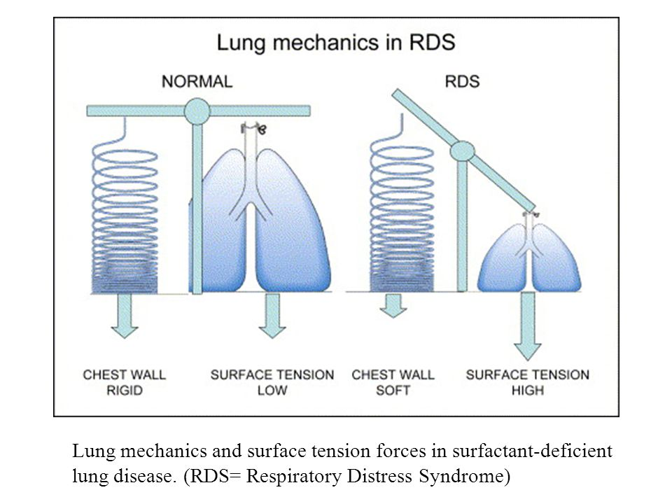 Lung mechanics and surface tension forces in surfactant-deficient lung disease.