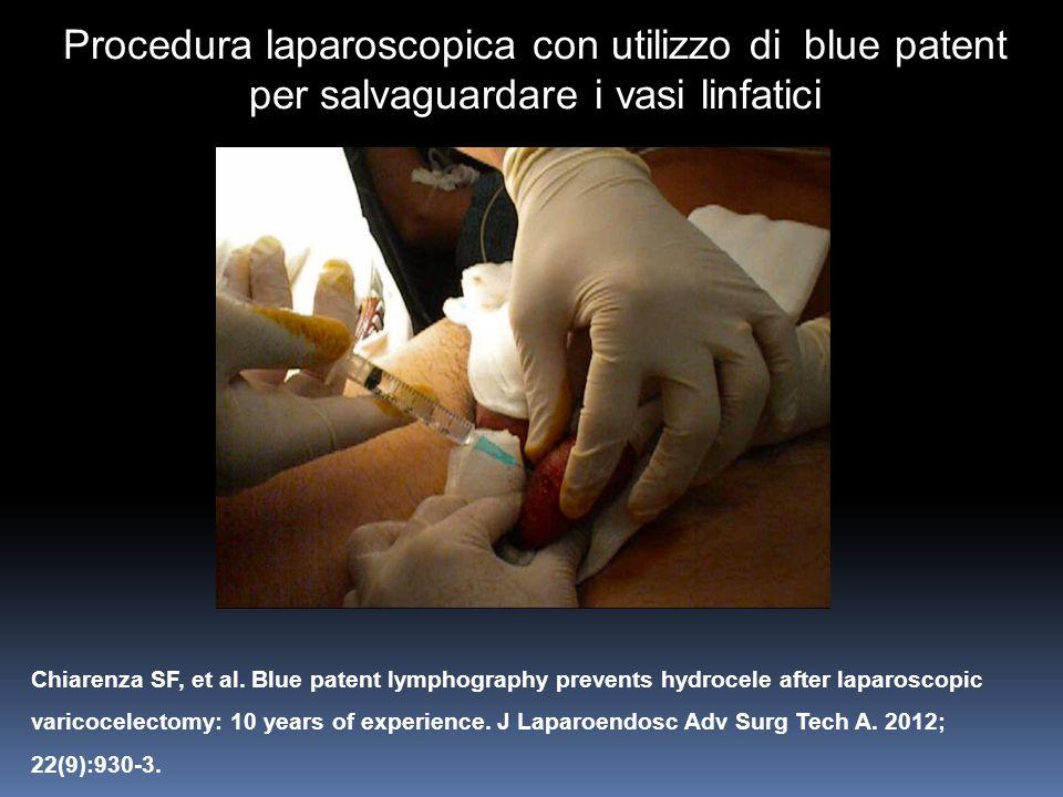 Chiarenza SF, et al. Blue patent lymphography prevents hydrocele after laparoscopic varicocelectomy: 10 years of experience. J Laparoendosc Adv Surg T