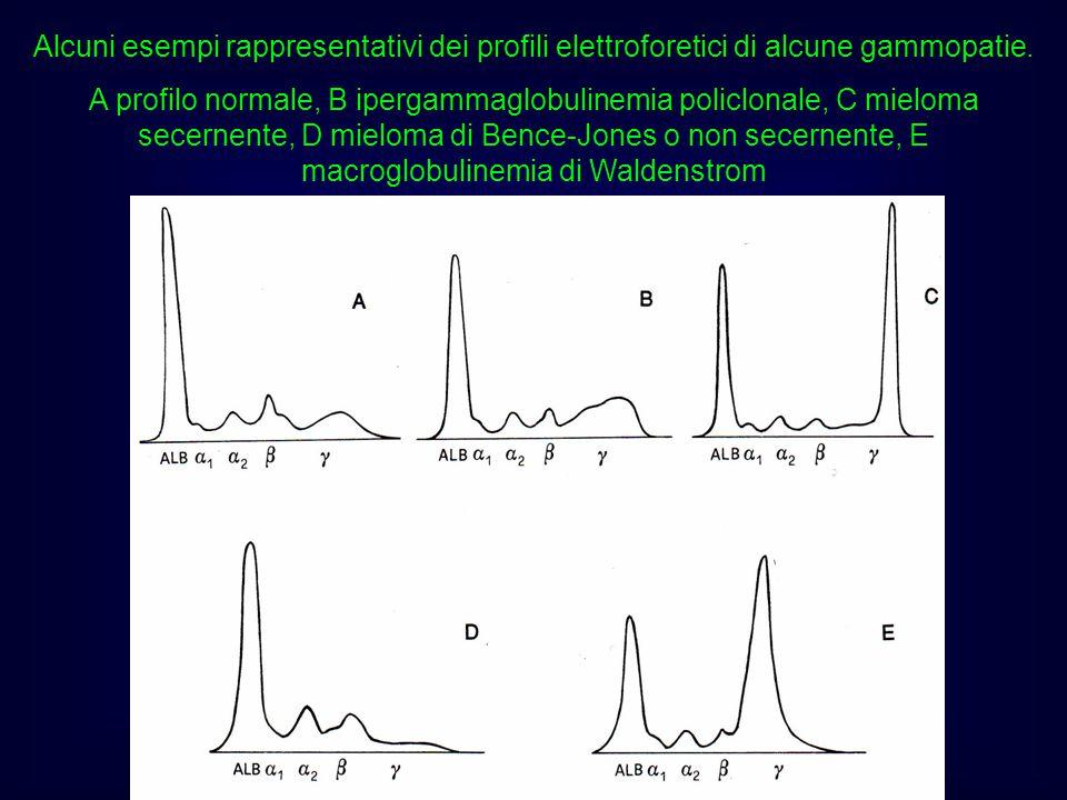 Alcuni esempi rappresentativi dei profili elettroforetici di alcune gammopatie.